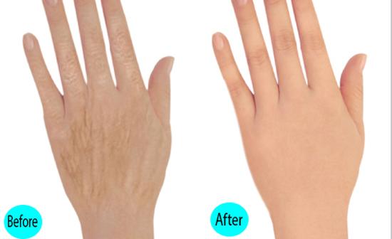 Cấy mỡ mu và ngón tay 2 bên