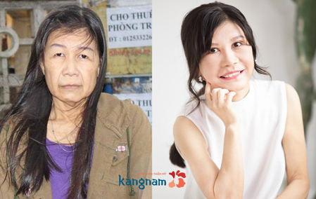 Hình ảnh so sánh trước và sau khi căng da của Nguyễn Thị Như2