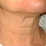 Căng da cổ có hiệu quả không? Tư vấn từ chuyên gia
