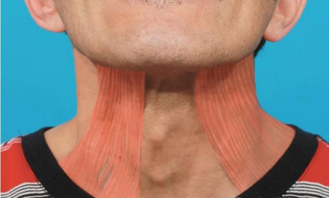 căng da cổ có nguy hiểm không 1