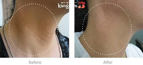 căng da cổ duy trì được bao lâu