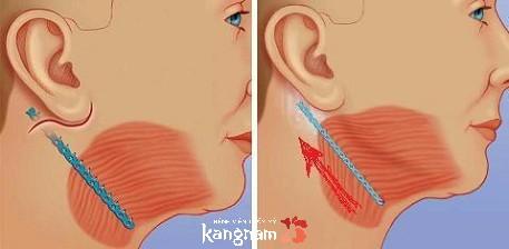 phẫu thuật căng da cổ được bao lâu