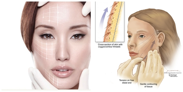 Đặc tính vượt trội của công nghệ căng da mặt bằng chỉ sinh học