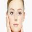 hình ảnh trước - sau căng da mặt