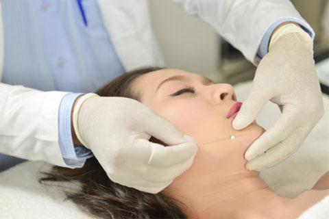 Căng da mặt bằng chỉ không phẫu thuật - Sắc mới hồi xuân - OFF 10 triệu 2