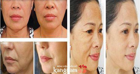 căng da mặt bằng chỉ có hiệu quả không2