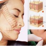 Trẻ hóa da mặt bằng chỉ sinh học tại Kangnam vì sao hút khách?