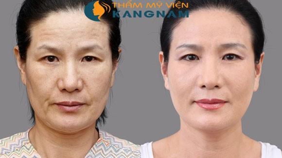 Căng da mặt bằng chỉ sinh học có an toàn không
