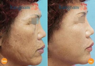 căng da mặt giấu sẹo 2