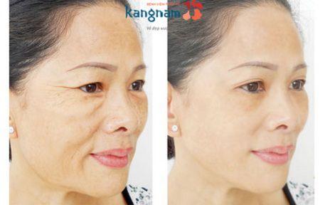 trẻ hóa da mặt không phẫu thuật