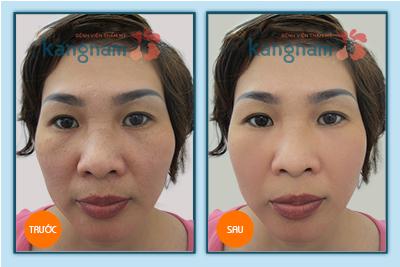 phẫu thuật căng da mặt bằng thermage