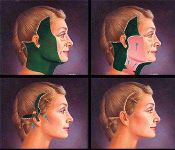 phẫu thuật căng da mặt nội soi có an toàn không