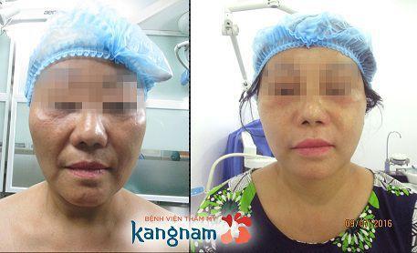 căng da mặt nội soi có hiệu quả không5