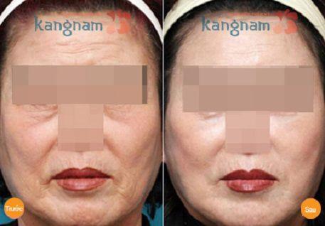 căng da mặt ở đâu uy tín tại Hà Nội