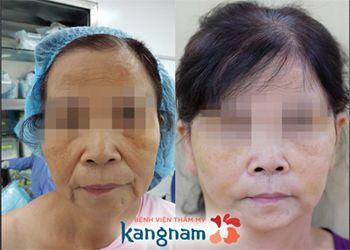 hình ảnh khách hàng căng da mặt bằng Thermage tại kangnam