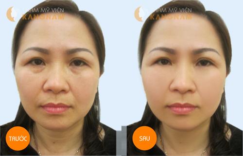 Lý do căng da mặt không phẫu thuật được ưa chuộng