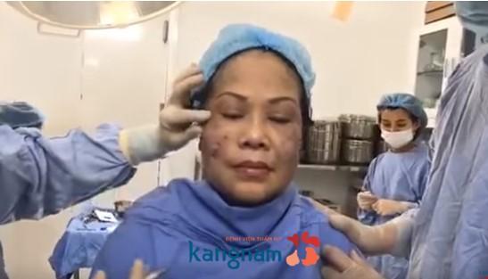 căng da mặt không phẫu thuật