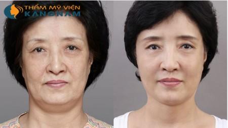 Có nên căng da mặt nội soi không?