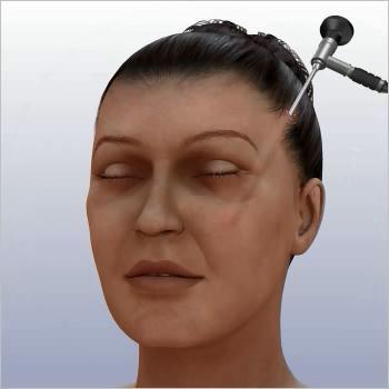 căng da mặt nội soi 4