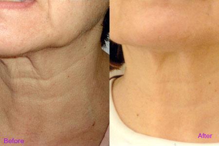 Phẫu thuật căng da cổ