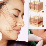 Phẫu thuật căng da trán có nguy hiểm không? Bác sĩ tư vấn