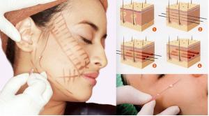 Phẫu thuật căng da cổ có an toàn không