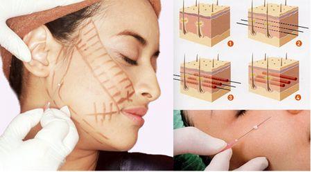 Nâng cơ mặt không cần phẫu thuật