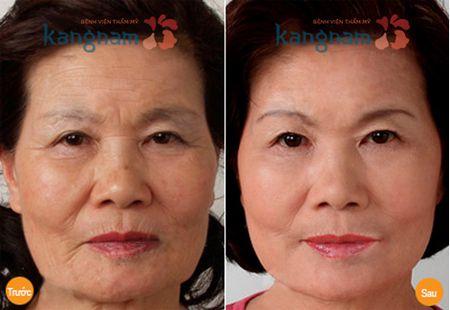 Nâng cơ mặt không phẫu thuật