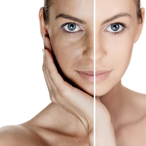 Những câu hỏi thường gặp về thẩm mỹ căng da mặt