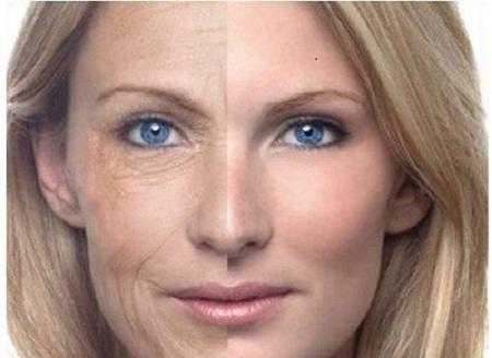 Những điều cần biết về căng da mặt bằng chỉ sinh học