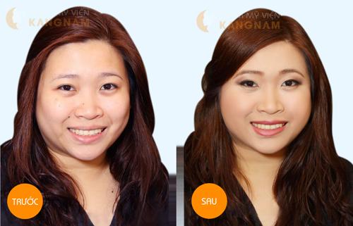 công nghệ căng da mặt chỉ vàng 24k
