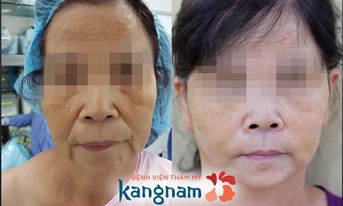 Khách hàng trước và sau khi thực hiện căng da mặt