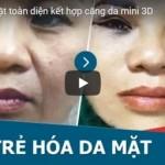 [Video] Căng da mặt 3D – Loại bỏ nếp nhăn toàn da mặt