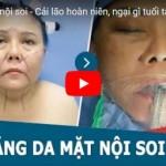 [Video] Cận cảnh quy trình – kết quả căng da mặt Nội Soi