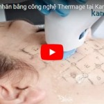 [Video] Căng da mặt bằng công nghệ Thermage