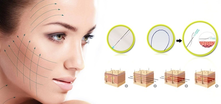 Phẫu thuật căng da mặt bằng chỉ